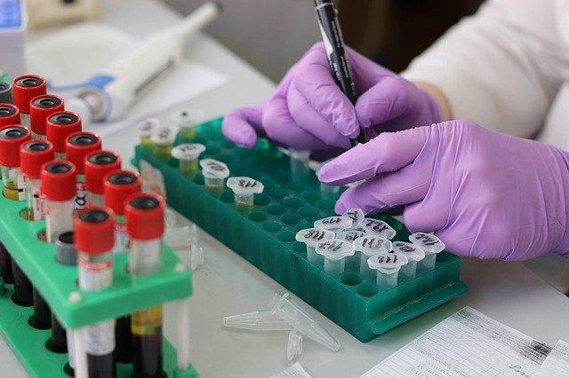 Най-голямата болница във Виена АКН вече разполага с 90-минутни тестове за коронавирус